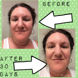 BEFORE AND AFTER SOOTHE
